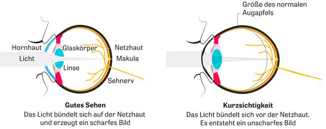 Kurzsichtigkeit: Warum Kurzsichtige nicht scharf in die Ferne sehen können.
