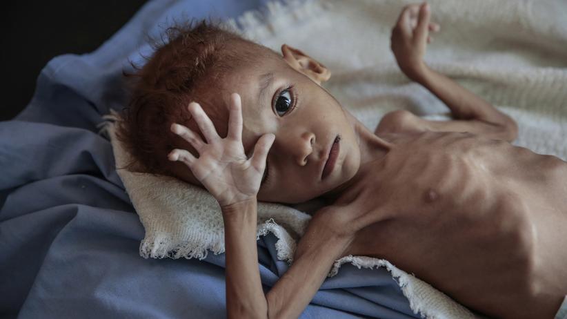 Jemen: Saudi-Arabien fehlt die Exit-Strategie