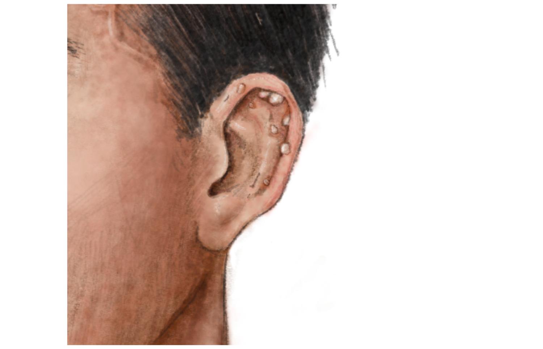 Disease symptoms: At first sight - Teller Report