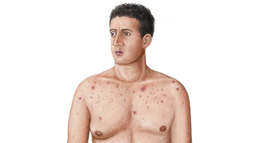 Krankheitssymptome: Auf den ersten Blick