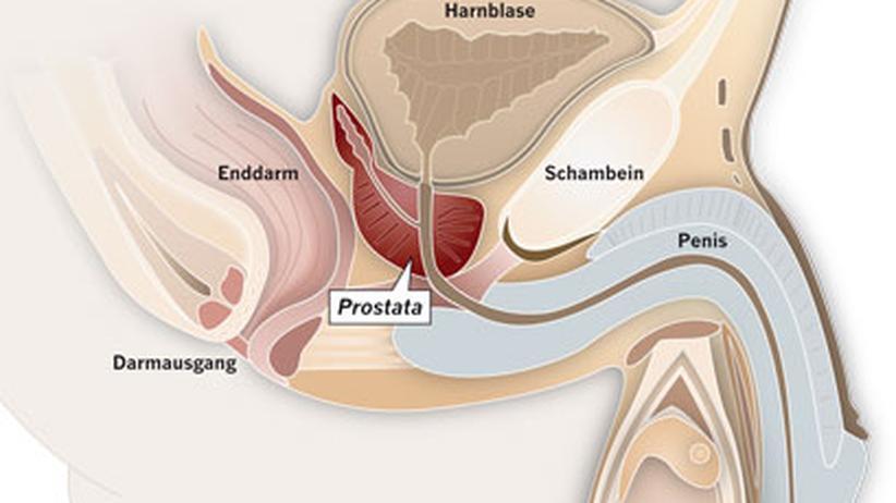 Prostatakrebs: Gefährdeter Adam