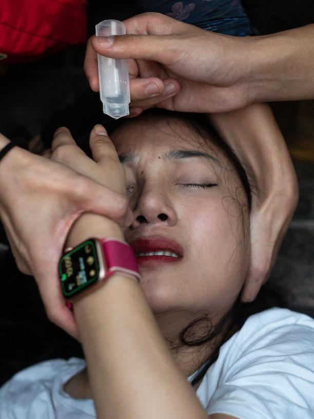 Hongkong: Medical volunteers help wash spray paint from a woman's eye as people attend a singing rally in Tsim Sha Tsui district in Hong Kong on November 2, 2019. - Hong Kong police fired tear gas and water cannon on November 2 as thousands of protesters hit the streets, defying authorities with another unsanctioned march as the democracy movement shows no signs of abating after nearly five months. (Photo by Philip FONG / AFP) (Photo by PHILIP FONG/AFP via Getty Images)