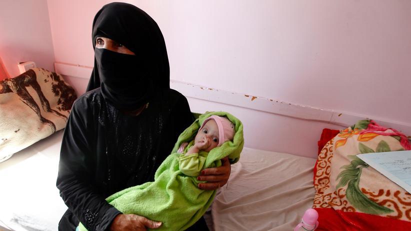 Welthunger-Index: Eine Jemenitin und ihr kleiner Sohn suchen Hilfe in einer Klinik in Sanaa, die sich speziell auf Unterernährung spezialisiert hat.