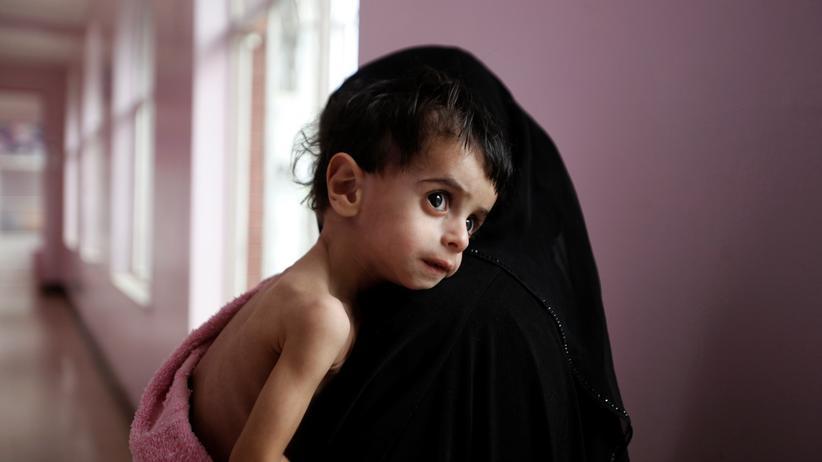 """UN-Prognose: """"Die schlimmste humanitäre Krise der Welt"""""""