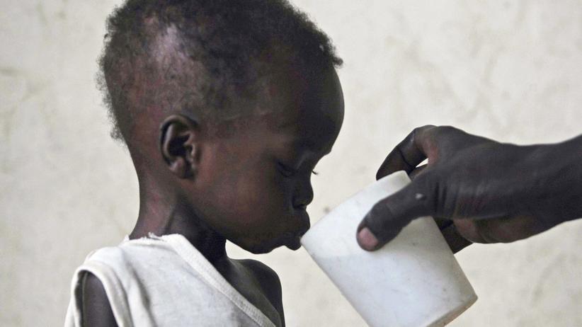 Welthungerbericht 2015: Unterernährtes Kind im Südosten Sudans