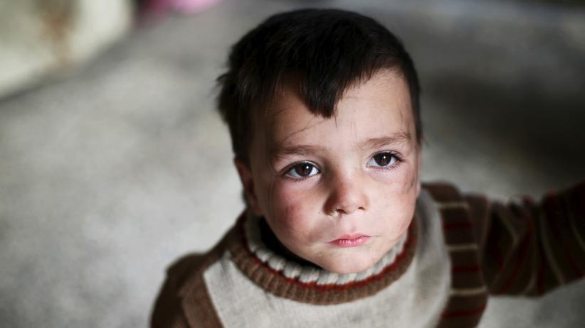 Unicef: Ein zweijähriger Junge in einem Vorort der syrischen Hauptstadt Damaskus