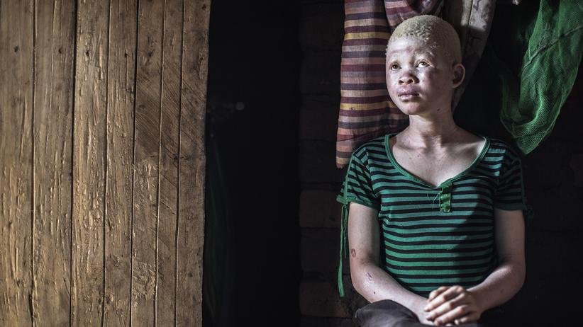 Albinismus Malawi