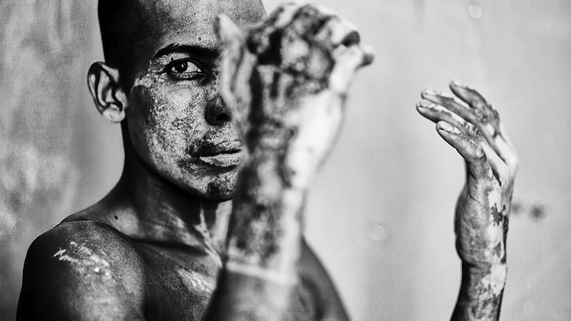 Rohingya: Ein Leben als Staatenlose