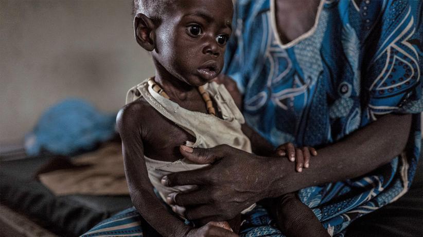 Welthunger-Index 2018: Wenig Fortschritte im Kampf gegen den Hunger