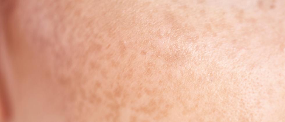 Hautpflege: Das Einmaleins der Gesichtspflege