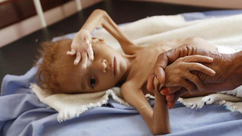 Getreidevorräte blockiert: Hungernotstand im Jemen: Regierung erhebt Vorwürfe gegen UN