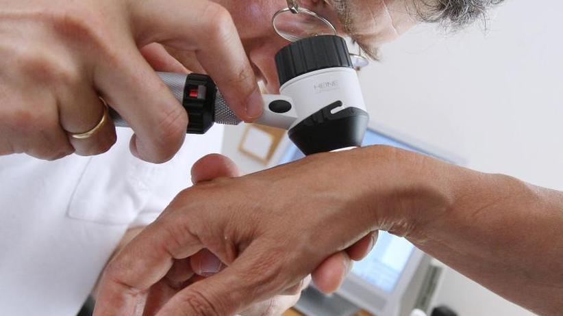 Studie: Künstliche Intelligenz schlägt Hautärzte bei Krebsdiagnose