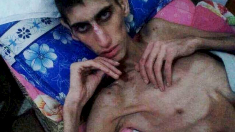 Syrien: Ein abgemagerter junger Mann im syrischen Madaja