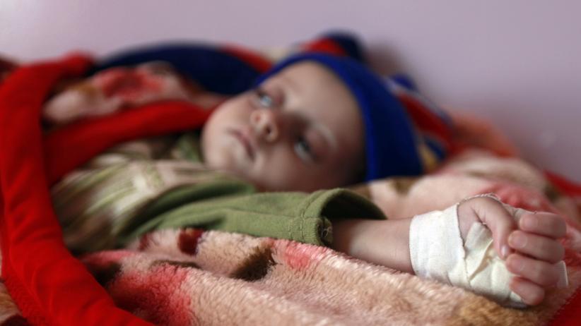 Vereinte Nationen: Ein mangelernährtes Kind in einem Ernährungszentrum in Jemens Hauptstadt Sanaa