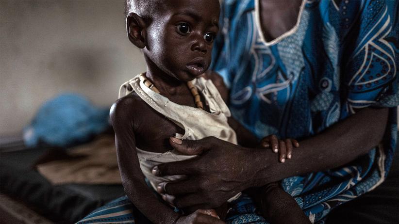 Donald Trump: So wie viele Menschen ist auch dieser unterernährte Junge in Südsudan auf Hilfe von ausländischen Organisationen angewiesen.