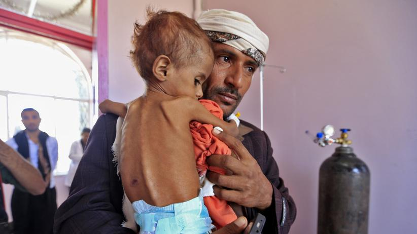 Jemen: Hungersnot weitet sich aus