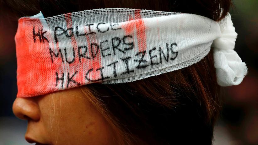 Hongkong: Nach der massiven Polizeigewalt am Wochenende sind verletzte Augen zum Symbol des Protests in Hongkong geworden.