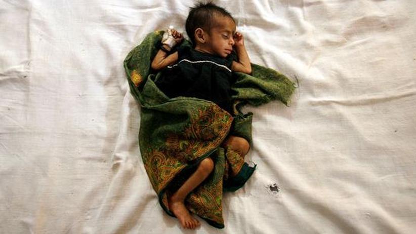 Schwellenland: Die vier Monate alte Geeta im einer Klinik für Unterernährte in Indien. Das Bild wurde im Mai 2007 aufgenommen - seither hat das Land kaum Fortschritte im Kampf gegen den Hunger erreicht.