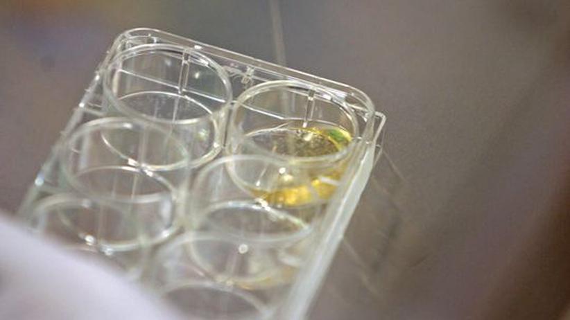 Embryonale Stammzellen: USA geben neue Stammzell-Linien frei