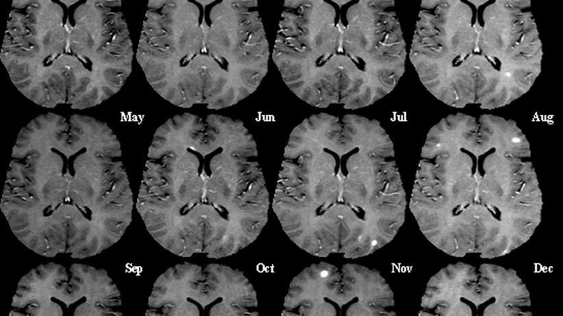 Medizin: Medikamente gegen Multiple Sklerose zeigen Wirkung