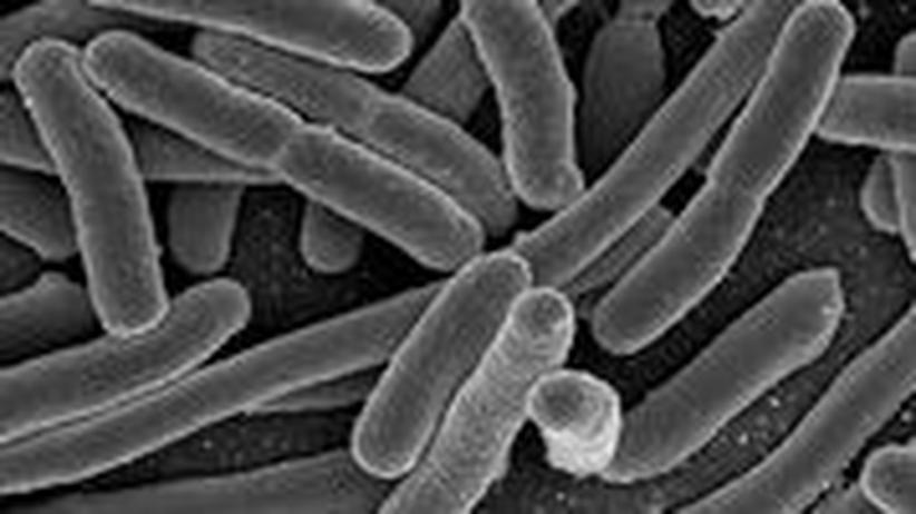 """""""Escherichia Coli""""-Bakterien im Elektronenmikroskop"""