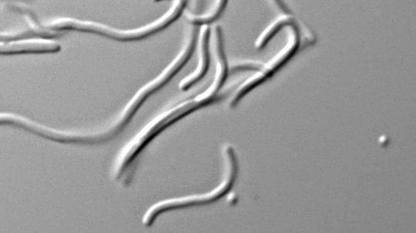 Künstlich veränderte E. coli-Bakterien unterm Mikroskop: Die Mikroben verzichten auf einen natürlichen Grundbaustein des Lebens.