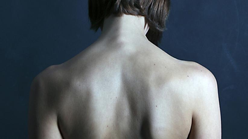 Fibromyalgie: Wenn quälende Schmerzen niemals enden