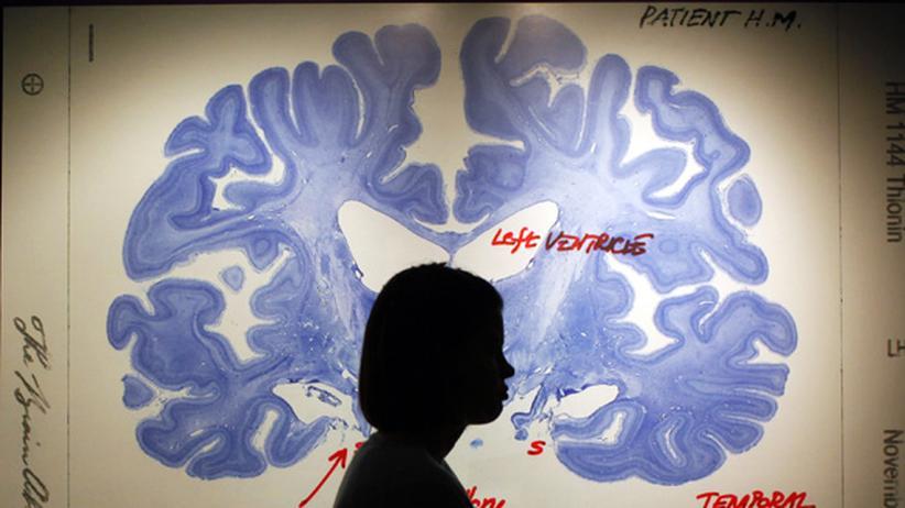 Epilepsie: Angst vor dem Anfall im Büro