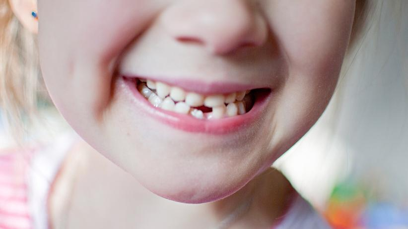 Zähne: Kinderzähne lassen Härte vermissen