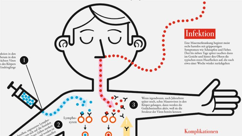 Masern-Impfung: Masern