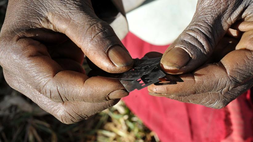 Riskant: Traditionell werden zur Beschneidung von Mädchen oft Rasierklingen benutzt. Kleinere, fachgerecht ausgeführte Schnitte unter Betäubung wären ein Fortschritt, meinen manche Ärzte.