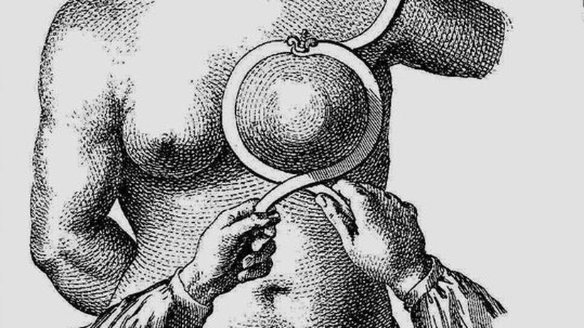 Brustkrebschirurgie im 18. Jahrhundert: Das damals neue, sichelartige Instrument fand kaum Anwendung. Meist wurde nur mit dem scharfen Messer operiert