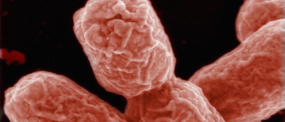 Mikroskopisch kleine Krankheitskeime wie das Ehec-Bakterium lauern überall. Hygiene kann sie im Zaum halten.