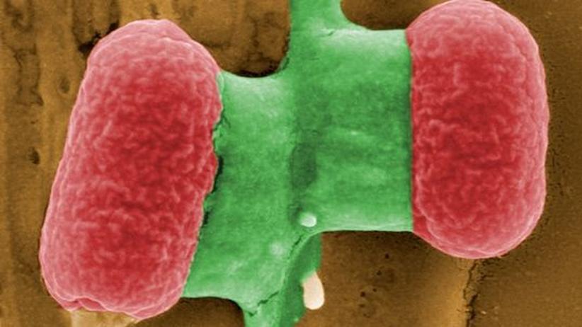 Seuchen: Krankheitskeime warten stets auf ein Comeback