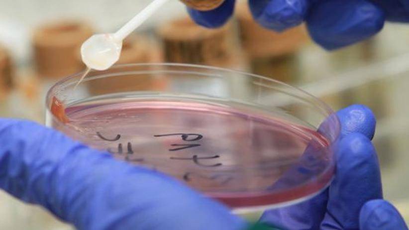 Bakterien-Analyse: Ein ganzes Ehec-Erbgut in 62 Stunden