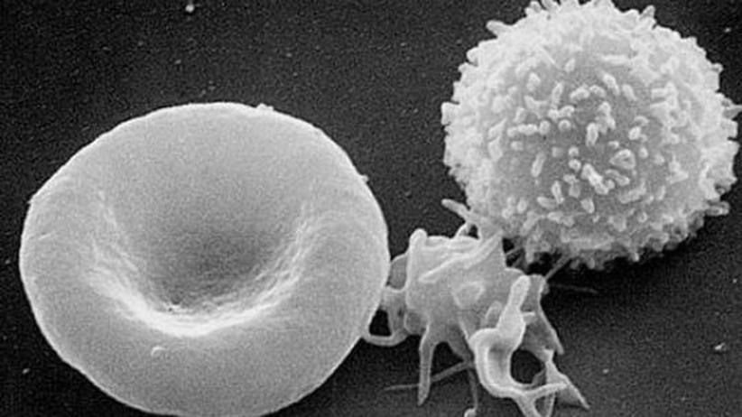Früherkennung: Ein Bluttest zur Krebsdiagnose