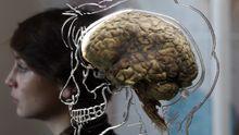 Eine Ausstellung im britischen Bristol Anfang 2011 zeigte echte menschliche Gehirne. Forscher versuchen, sie künstlich herzustellen.