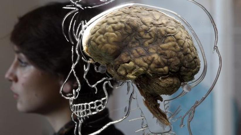 Neurobiologie: Das Superhirn