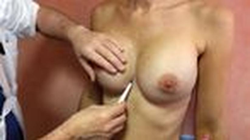 Schönheitsoperationen: Gerissenes Geschäft mit falschen Brust-Implantaten