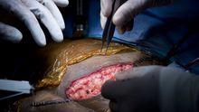 Nieren-Transplantation in Baltimore in den USA