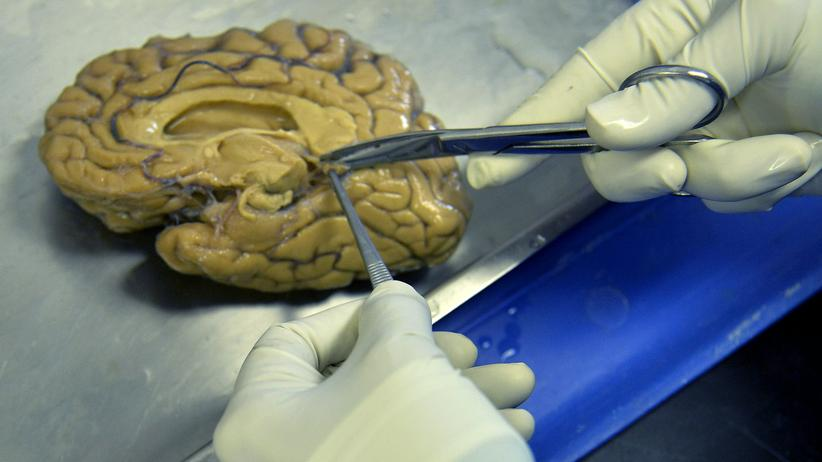 Alzheimer Creutzfeldt-Jakob Eiweiße Plaques Medizin Pathologie Ansteckung