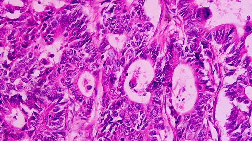 Krebs: Frühwarnsystem gegen Krebs