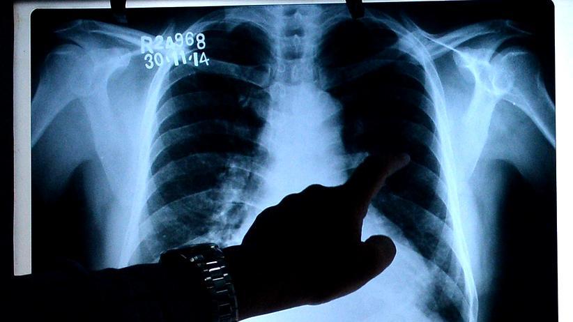 Medizinrecht: Bereits beim Röntgen können Fehler passieren.