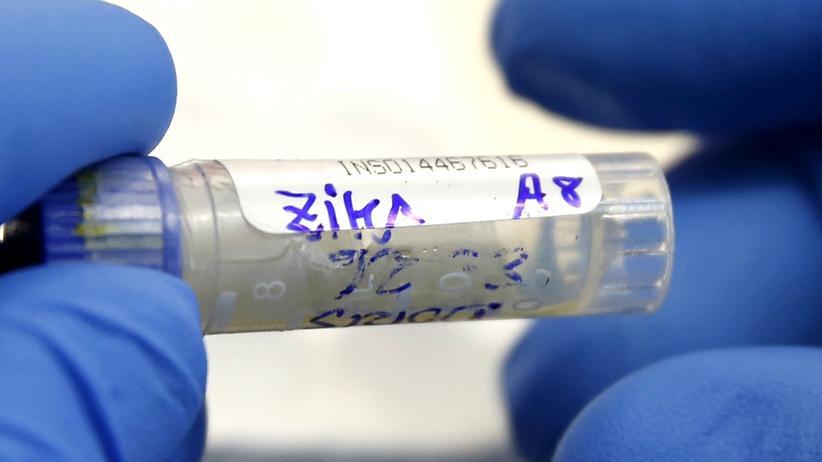 Lateinamerika: Ein Labormitarbeiter testet eine Blutprobe auf das Zika-Virus.
