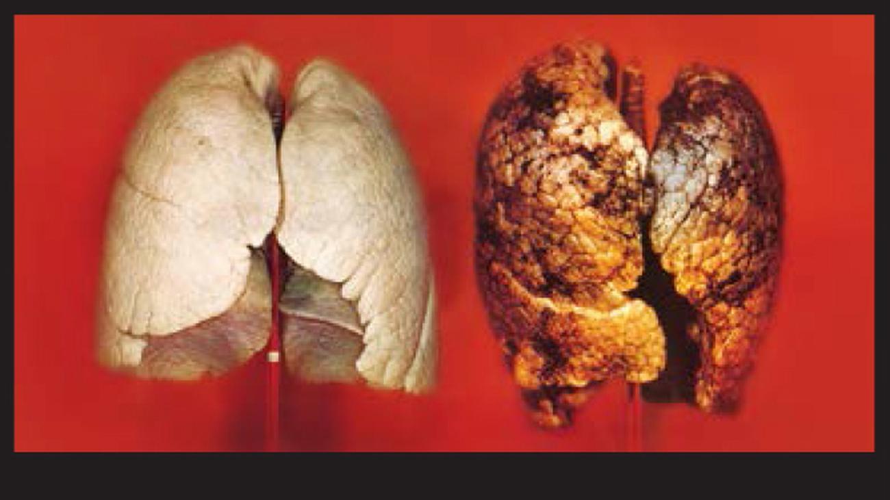 Mit welchen Medikamenten Rauchen aufzugeben,