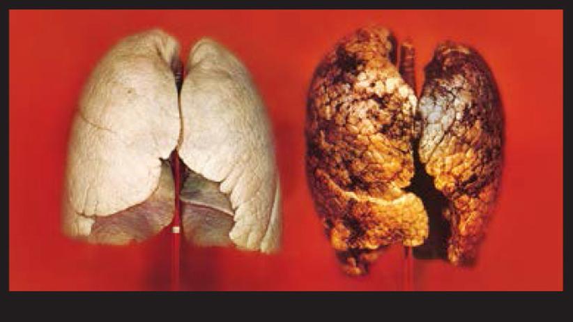 Rauchen, Tabak, Schockbilder