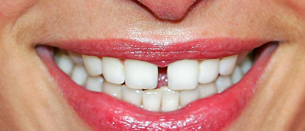Zahnpflege Reinigung Zahnpasta Zähne Lächeln Mundhygiene