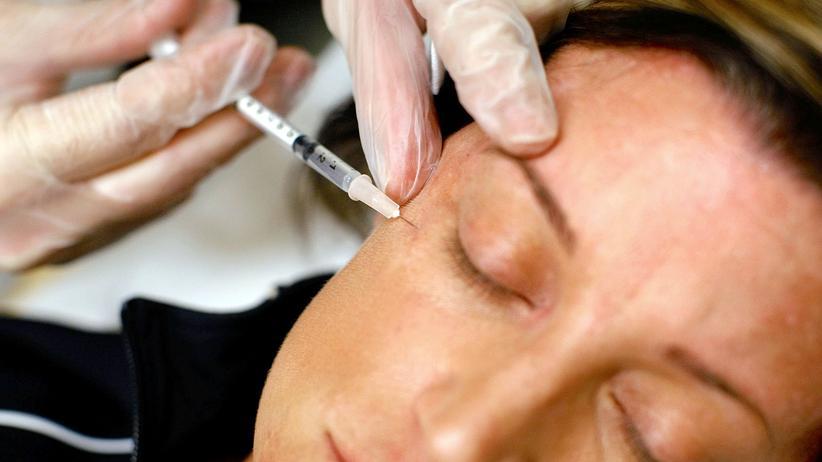 Botox: In der Schönheitsmedizin spritzen Ärzte zur Glättung einer Zornesfalte 5 bis 8 Einheiten, für die gesamte Stirn 12 bis 20.