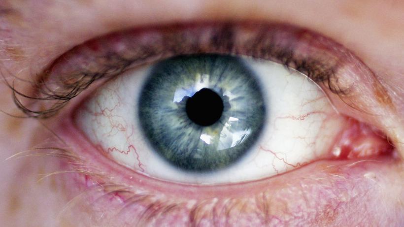 Kosmetik Strahlende Augen Was Man Dafur Tun Kann Und Besser