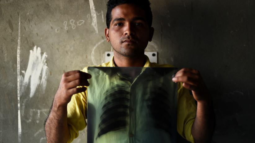 Tuberkulose: Ein Tuberkulose-Kranker aus Indien zeigt ein Röntgenbild seiner Lunge. In seinem Land gibt es ungefähr 130.000 Fälle von multiresistenter Tuberkulose.